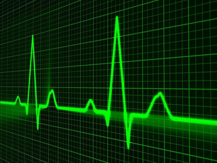 cardiac profiler interface image